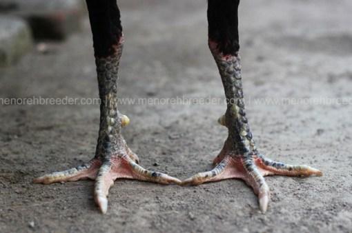 kaki-kering-pukul-sakit
